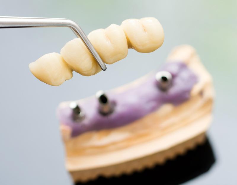 Studio dentistico Lorè - Implantologia a Milano a Bergamo
